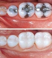 Composite resin - metal free dentistry