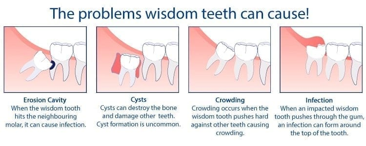 Problems with wisdom teeth infographic