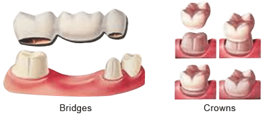 Dental Bridges & Crowns illustrations