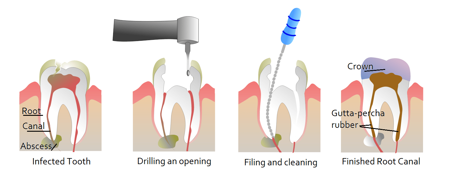 Root Canal Therapy Infographic