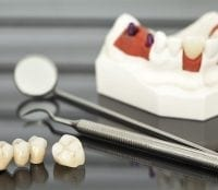 Dental crowns and bridges sitting on table next to other dental supplies