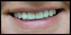 after image of patient with fixed teeth