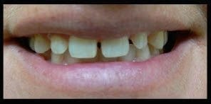 before image of patient with crooked teeth