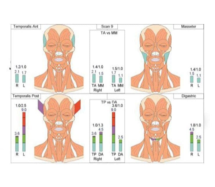 Four diagrams showing different muscle groups in the human face