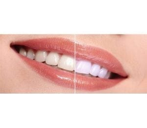 Side by side comparison of teeth whitening before and after the procedure