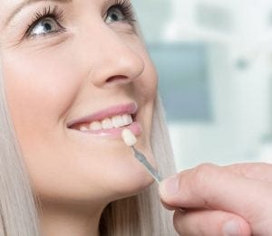 Patient getting her teeth looked at with the help of veneers