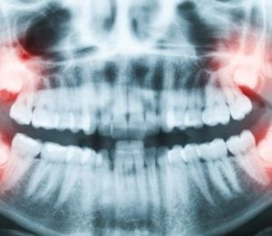 X-ray of patient with impacted wisdom teeth coming through