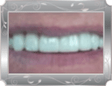 Image of patient smiling with bright white and straight teeth.