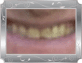 Image of patient smiling with bright yellow and crooked teeth.
