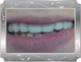 Spaced teeth after treatment at Grande Prairie Family Dental Clinic