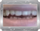 Spaced teeth before treatment at Grande Prairie Family Dental Clinic