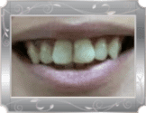 Image of patient with crooked and yellow front teeth.