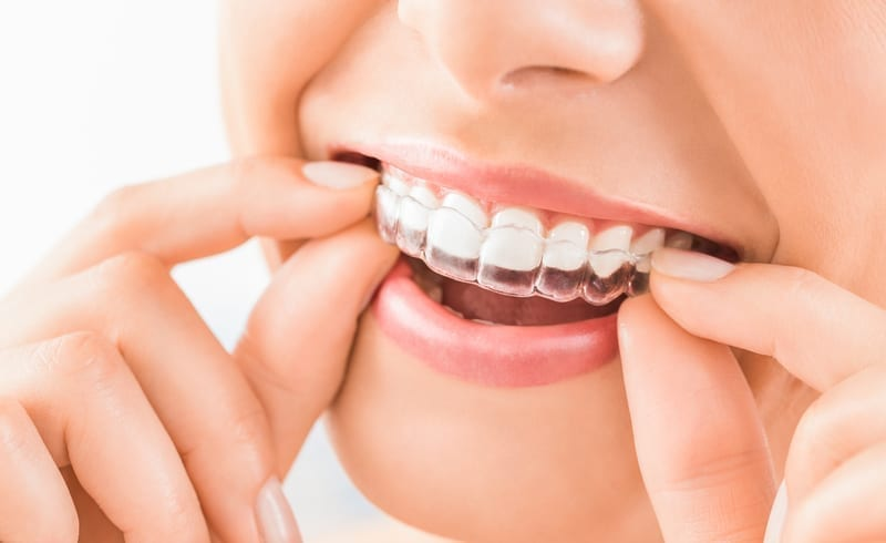 Young girl putting on Invisalign