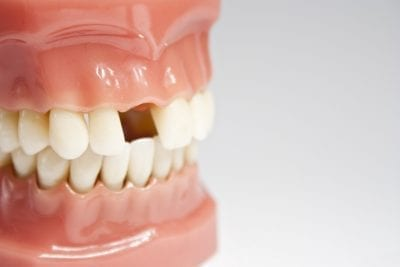 Model of teeth with a missing tooth