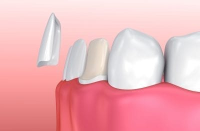 3D-Image-showcasing-how-dental-veneers-work