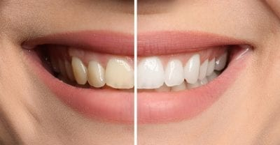 Before and after of woman who had teeth whitening