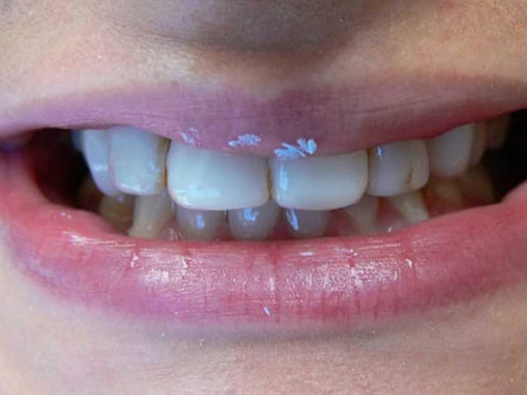 Patient before picture of teeth